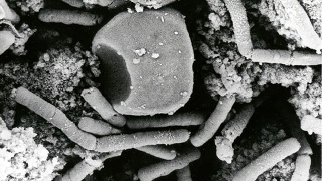 Bactérie: la bacillus anthracis responsable de l'anthrax. [AP Photo/HO, Anthrax Vaccine Immunization Program - Keystone]