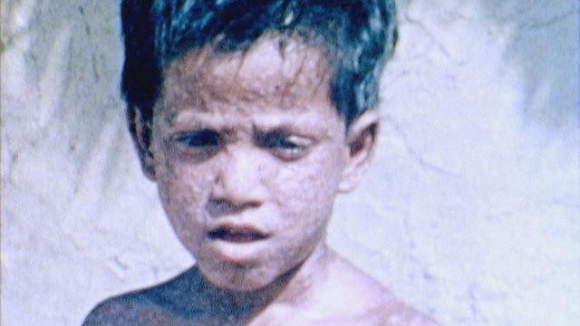 Eradication de la variole [RTS]