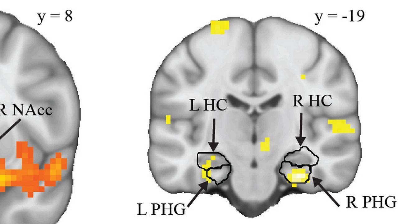 L'optimisation de la consolidation des souvenirs est le produit d'un dialogue neuronal entre le circuit de la récompense (à gauche) et celui de la mémoire (à droite).  UNIGE [UNIGE]