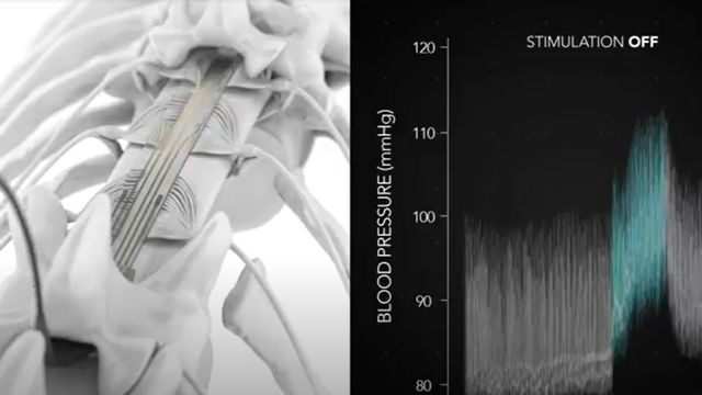 Des chercheurs ont développé un implant qui permet de contrer les problèmes de tension fréquents chez les personnes souffrant d'une lésion de la moëlle épinière. Capture vid avec CP EPFL EPFL, 2021 [EPFL, 2021]