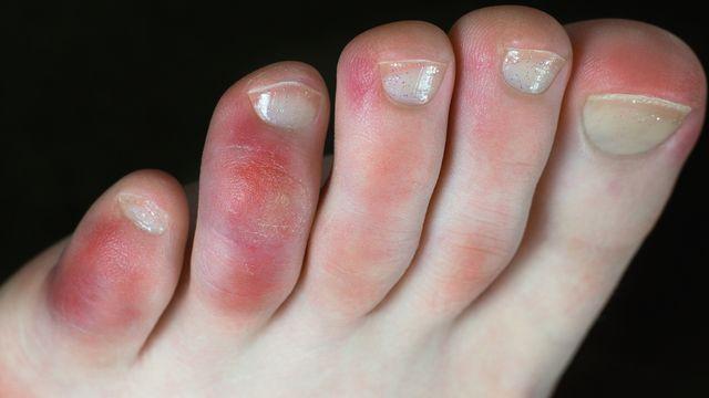 """Depuis le début de la pandémie de Covid-19, les dermatologues du monde entier ont signalé des cas inexpliqués de pseudo-engelures, surnommées """"orteils Covid"""". Tunatura Depositphotos [Tunatura - Depositphotos]"""