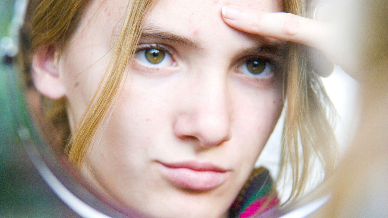 En cas d'acné, faut-il percer les boutons blancs? [Phanie via AFP]