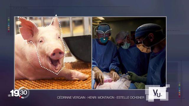 Des scientifiques américains ont réussi à faire fonctionner sur un humain le rein d'un porc génétiquement modifié. [RTS]